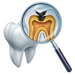 toothdecay