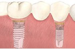 The bridge is then permanently attached to the dental implants without the use of metal hooks or clasps. The result is a naturally beautiful, healthy-looking smile.